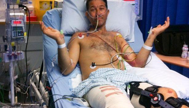 Man loses legs in car accident
